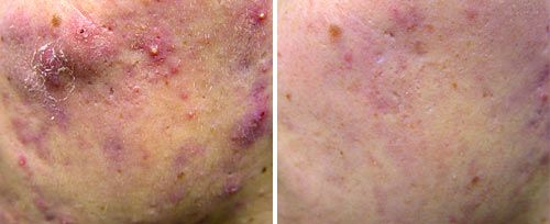 active_acne2_sult_rn