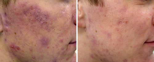 active_acne3_sult_rn